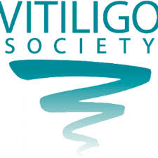 vitiligo dating uk Vitiligo is a long term skin condition characterized by patches of the skin losing their pigment [1] the patches of skin affected become white and usually have sharp margins.